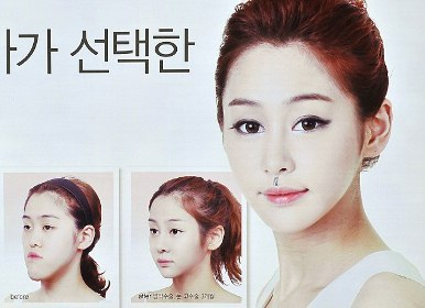 S  Korea Cracks Down on Foreign-focused Plastic Surgery